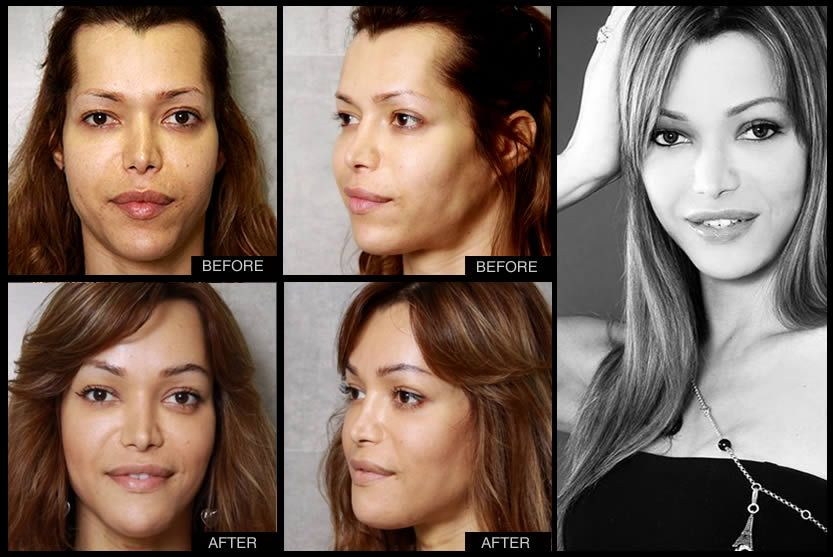 Before  After 2013  Facial Feminization Surgery  Before -6883
