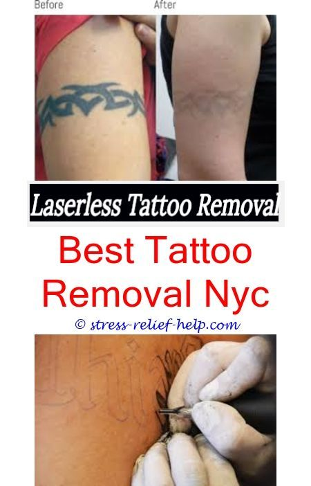 Can you get laser tattoo removal while pregnant.How to remove stick ...