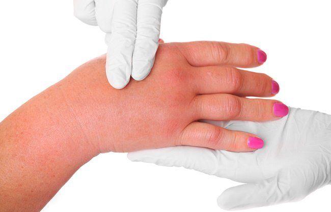 causas de dolor en los pies en la mañana