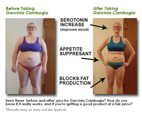 Before After Garcinia Cambogia Garcinia Cambogia Garcinia Fast