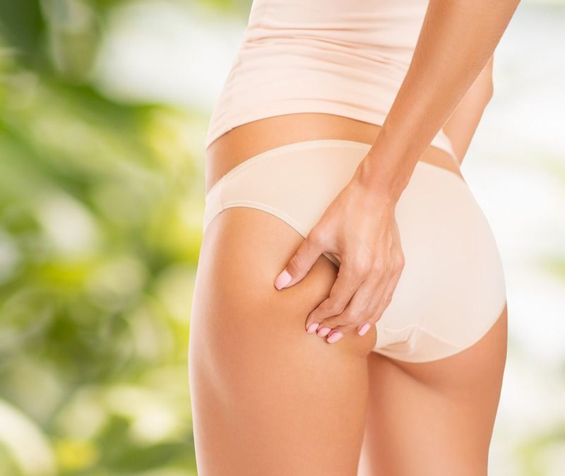 5 Ways to Reduce the Appearance of Cellulite