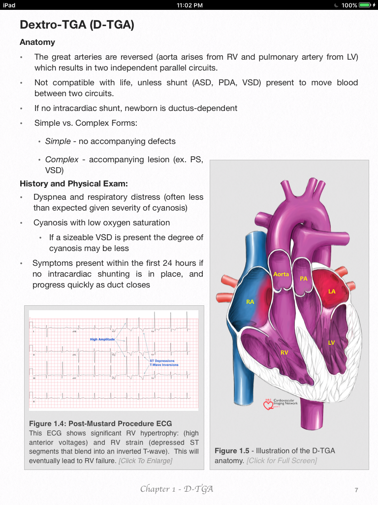 Pin by nonas arc on Transposition of the Great Arteries; d-TGA & L ...