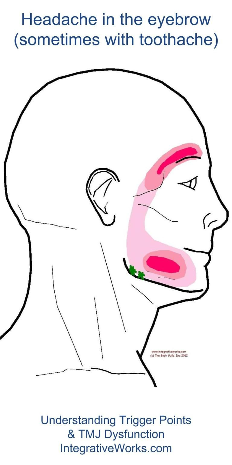 Understanding Trigger Points Headache In The Eyebrow Pain