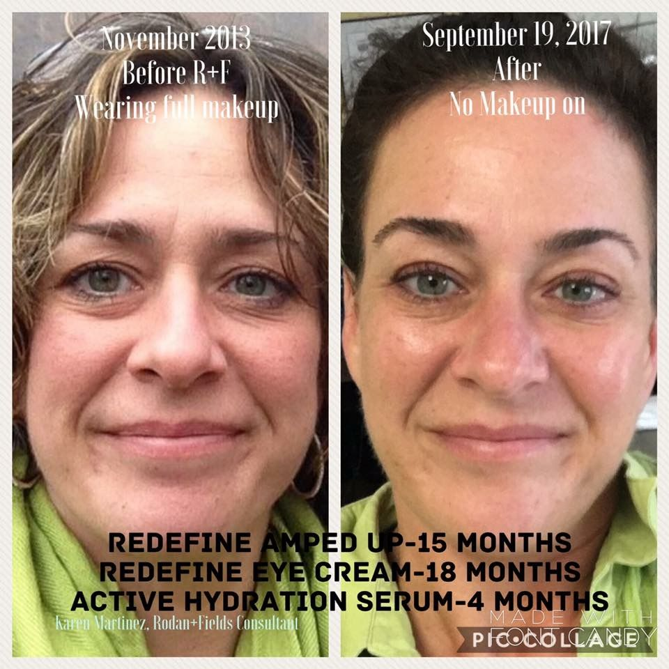 Intensive Renewing Serum merges powerful Peptides with R+F