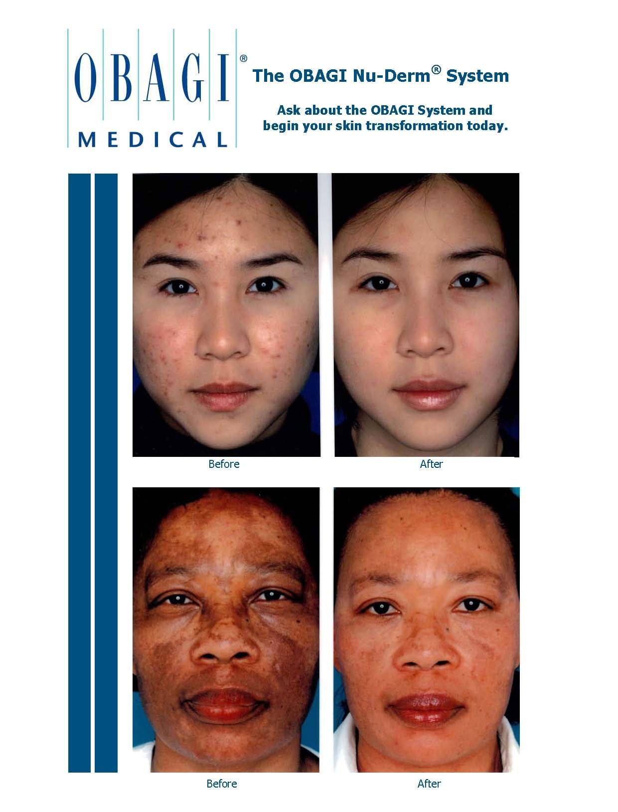 Obagi Nu Derm Shocking Before And After Photos What