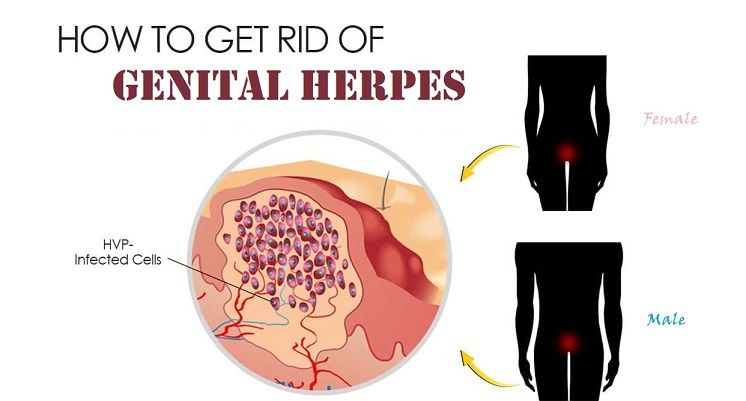 Sexually transmitted diseases pictures herpes males