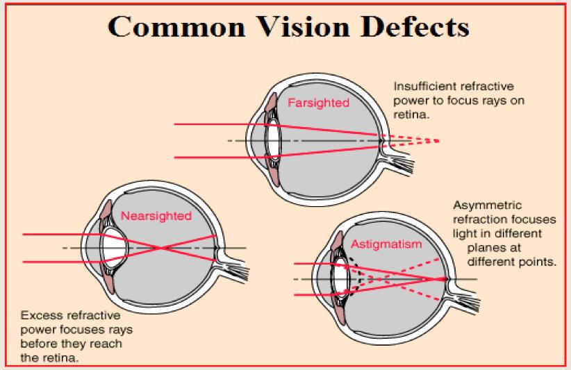 coraxan és látás hogyan lehet javítani a látást szürkehályoggal