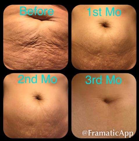 90 days of Nerium Firm. www.gretchenbarocio.nerium.com