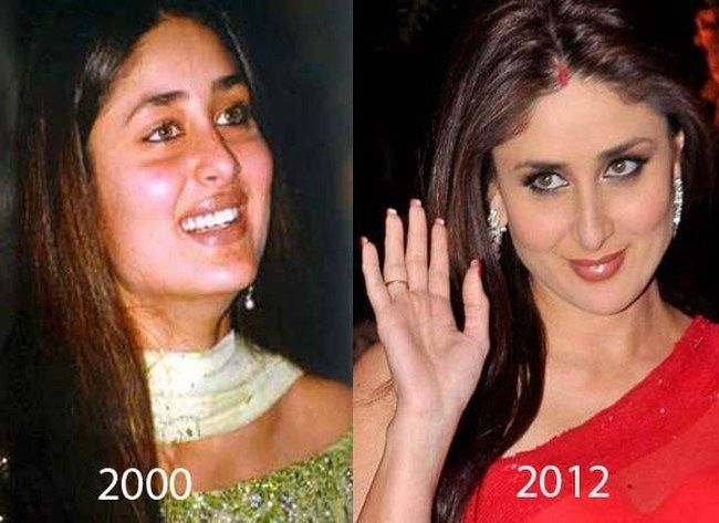 Kareena Kapoor Before And After Plastic Surgery Cosmetic Surgery Plastic Surgery Celebrity Plastic Surgery
