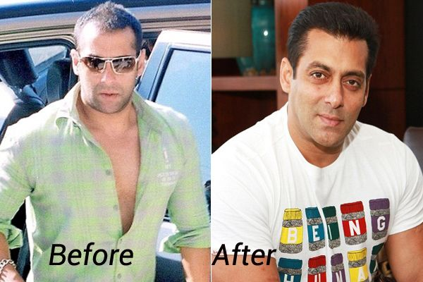 2 Salman Khan He Underwent A Hair Transplant