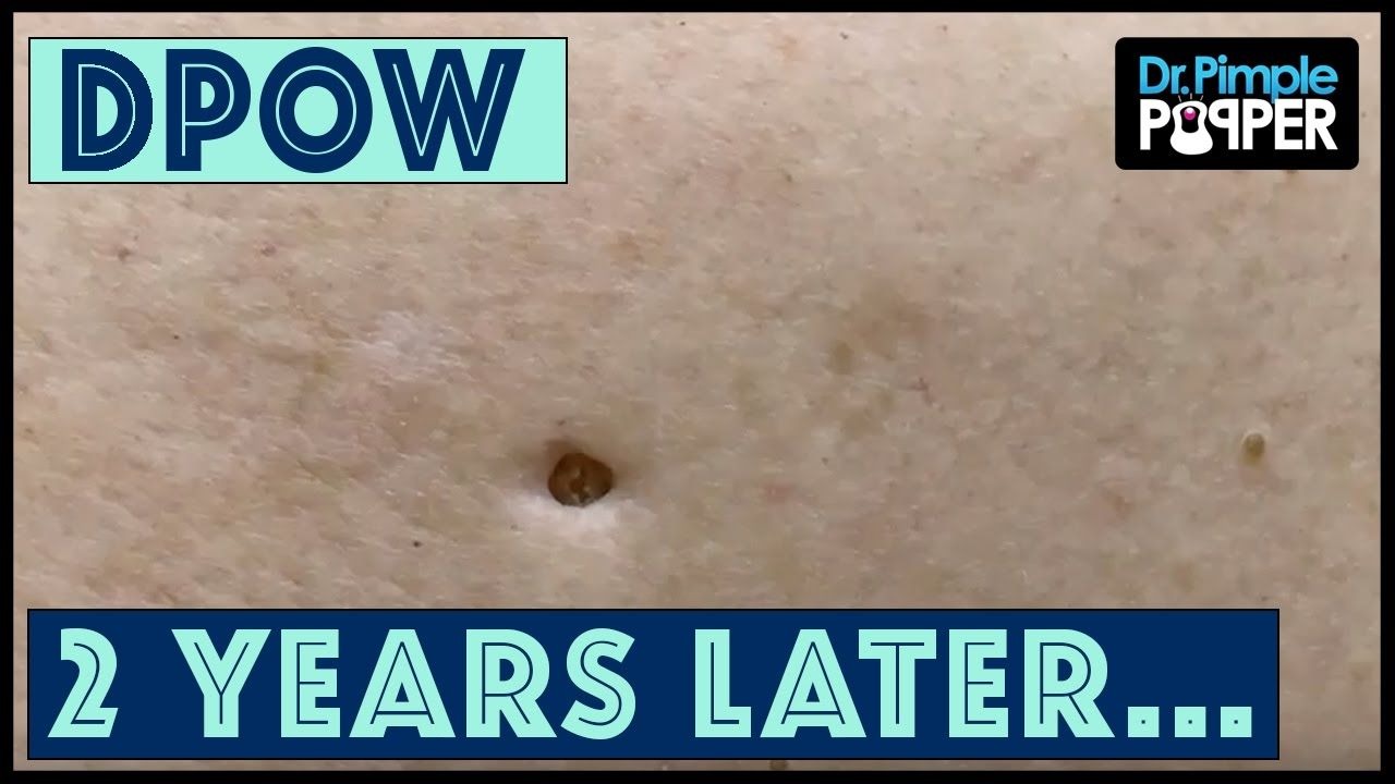 Flip it & Reverse it Blackhead Extraction / Dilated Pore of
