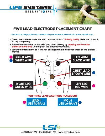 five lead telemetry
