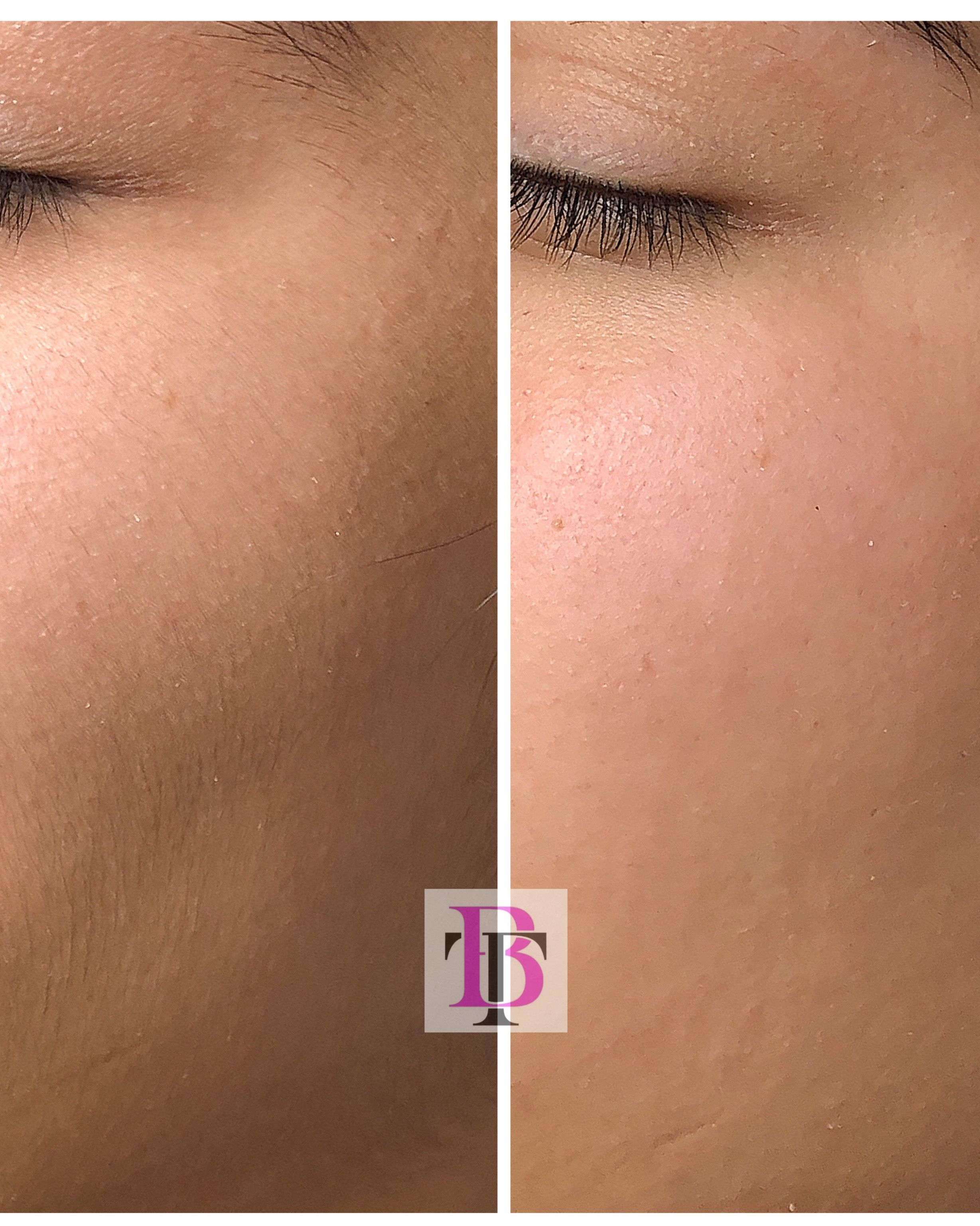 Dermaplaning makes a huge difference zoom in to see