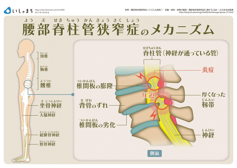 読み方 脊柱 管 狭窄 症