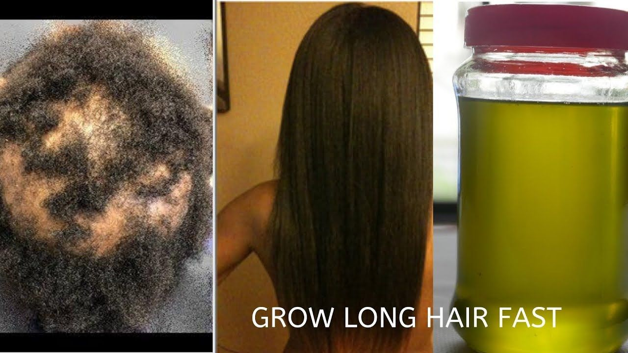 Your Hair Will Grow Like Crazy Grow Hair Long Thick Healthy Fast
