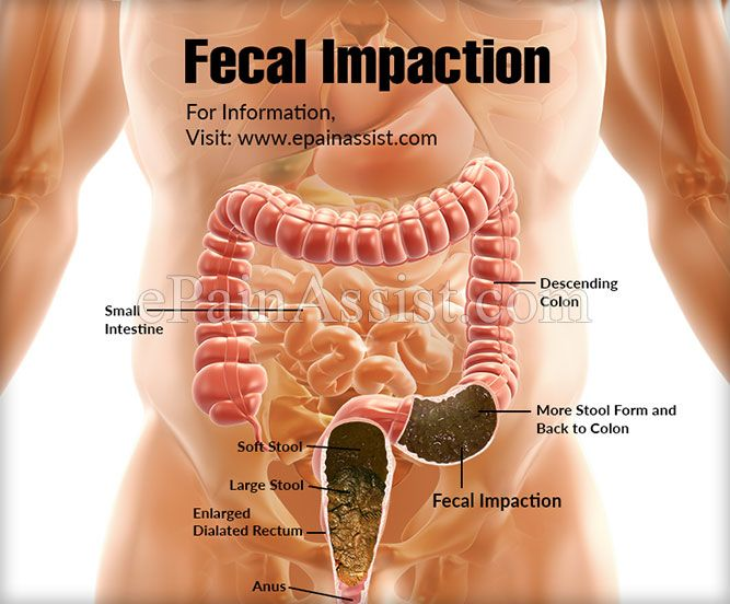 Fecal Impaction Diagram - Wiring Diagram schematics