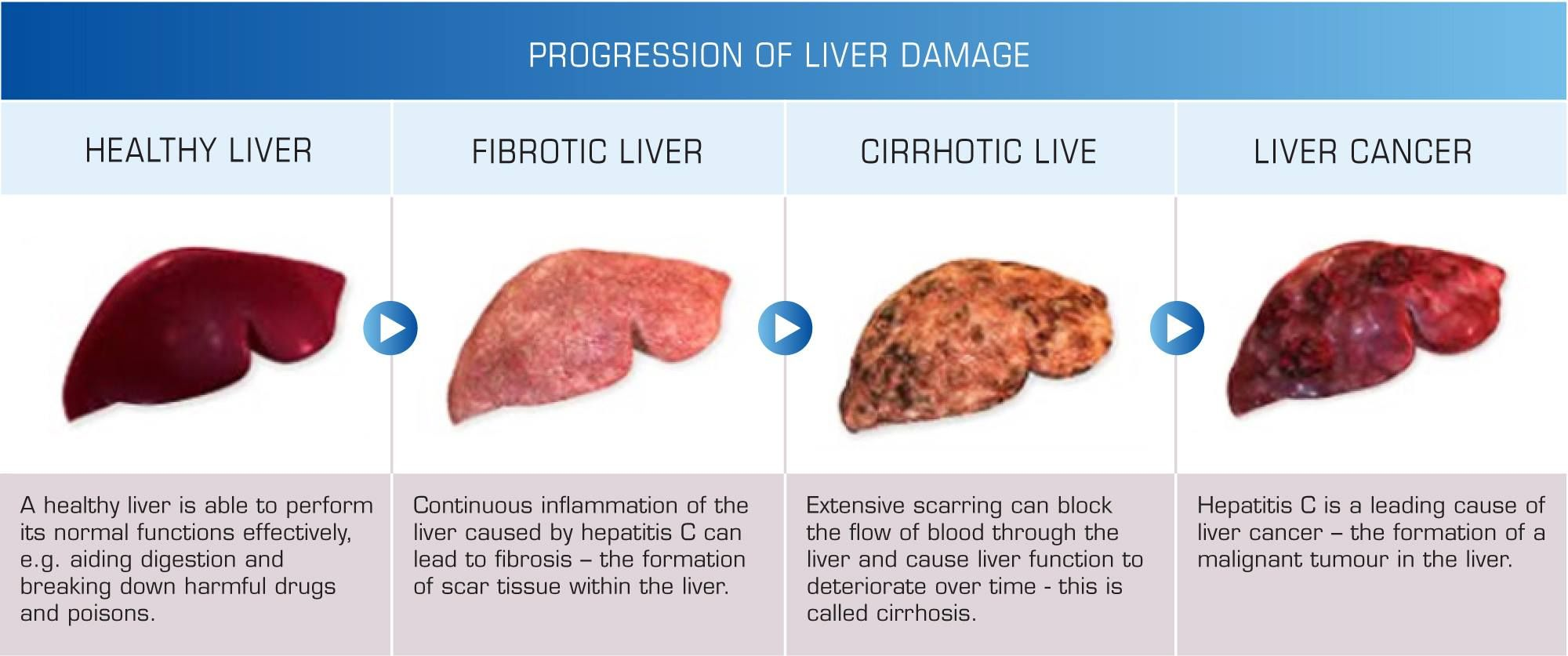 The Progression Of Liver Disease Health Pictures Liver Cancer Liver Failure Healthy Liver