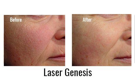 October Spabucks Deep Deals Only Laser Resurfacing Facial Wrinkles Laser Skin