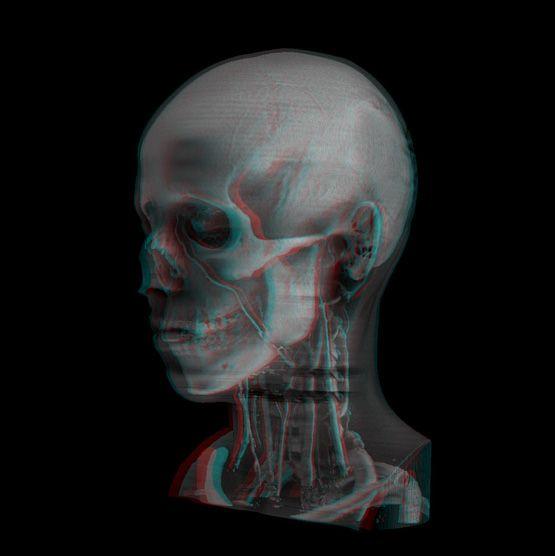 Head_Stereo04