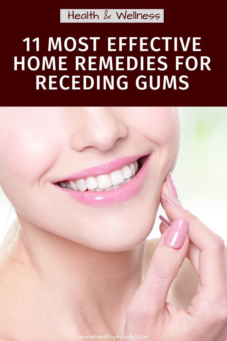 how to fix receding gums fast