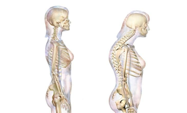 Dowager's hump is the most common type of kyphosis and ...
