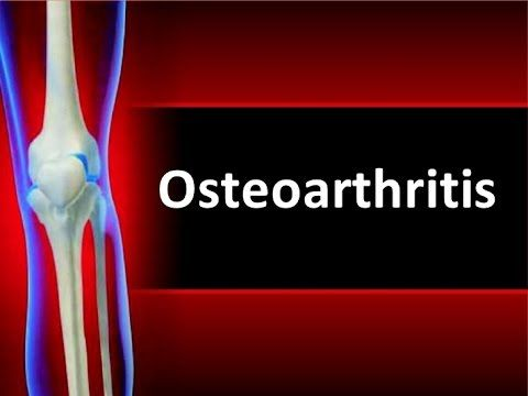 Image result for Definition and symptoms of osteoarthritis