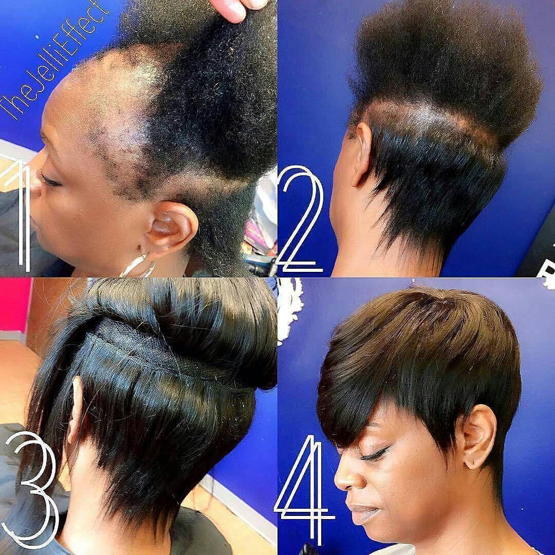 Severely damaged hair   Severe hair loss, Short weave ...