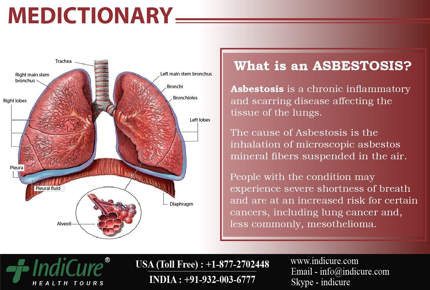 45++ Asbestos to health
