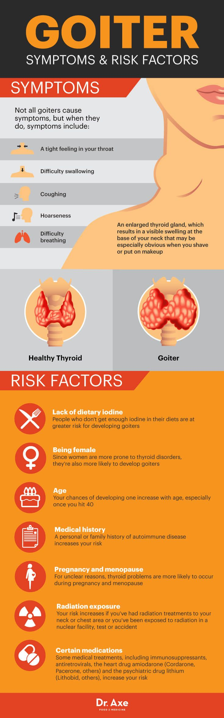 Goiter symptoms and risk factors - Dr. Axe  http://www.draxe.com #health #holistic #natural