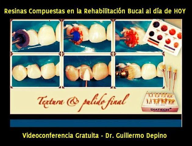 Videoconferencia: Resinas Compuestas en la Rehabilitación Bucal al día de HOY | Odonto-TV