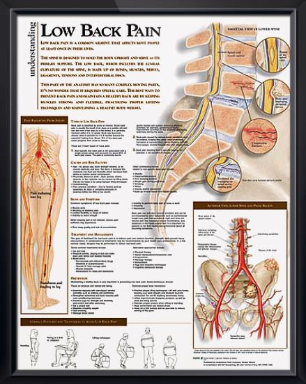 Low Back Pain Chart 20x26 | massage therapy | Pinterest | Design ...