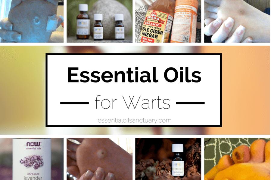 4 Essential Oil Based Remedies For Warts Verruca Warts Remedy Essential Oils Essential Oil Recipes
