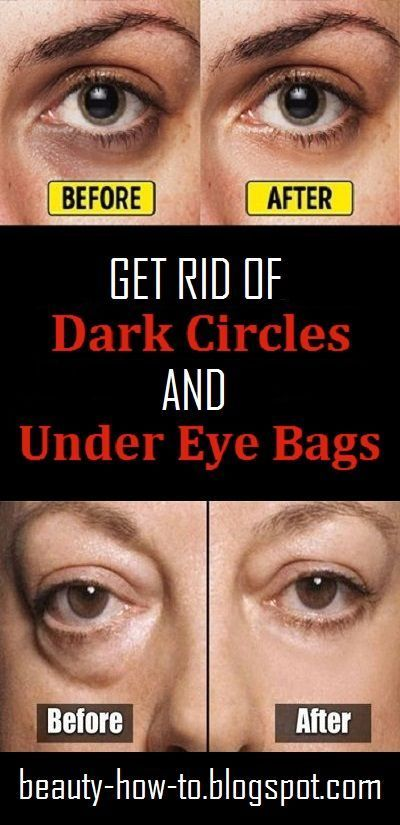 How to get rid of Dark Circles and Under Eye Bags # ...