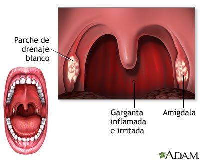 Faringitis estreptococica remedios caseros