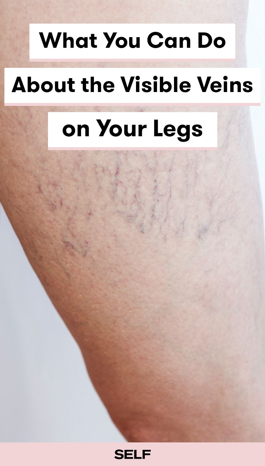 Can You Get Acne On Your Legs Pin On Health Wellness