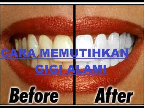 Cara Memutihkan Gigi Memutihkan Gigi Secara Alami Gigi Kuning