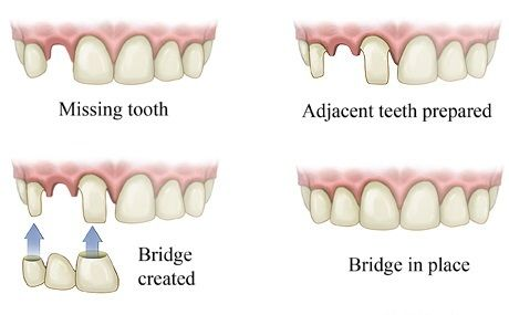 Dentaltown Bridges Are Crowns That Are Attached Together