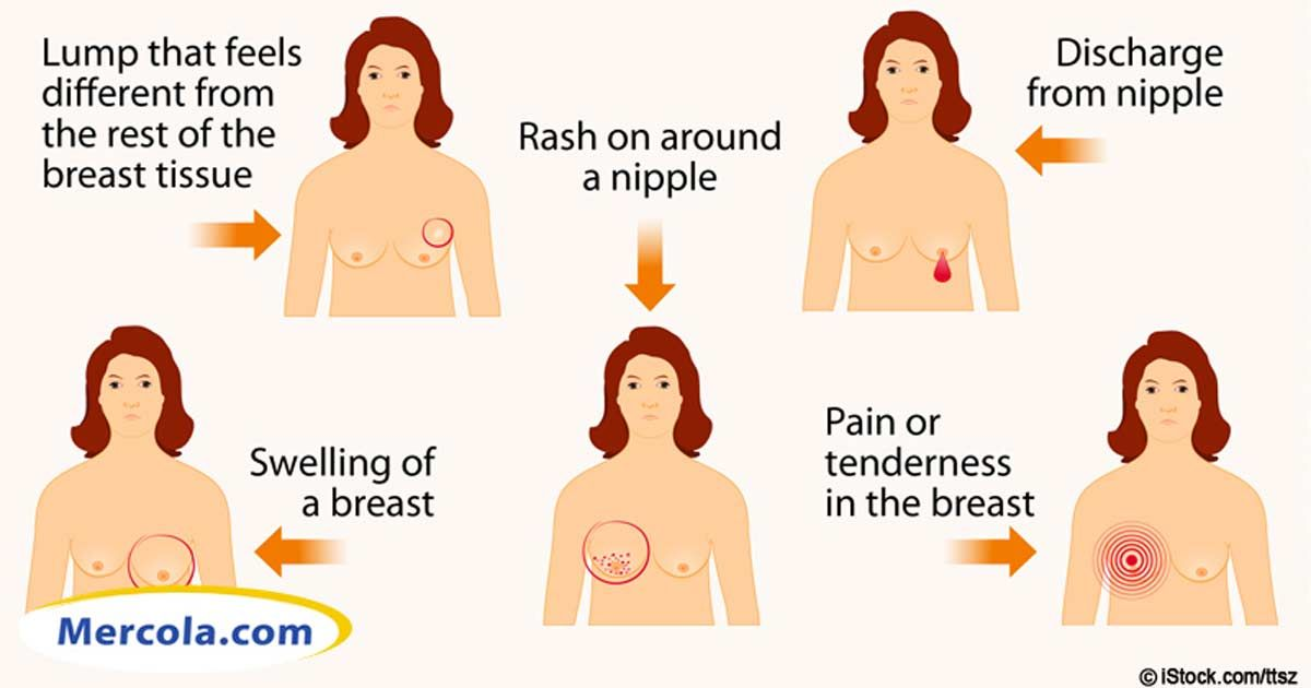 Optimizing your vitamin D levels may help you prevent more than 16 different types of cancer including breast and skin cancers. http://articles.mercola.com/sites/articles/archive/2013/05/12/vitamin-d-may-prevent-breast-cancer.aspx