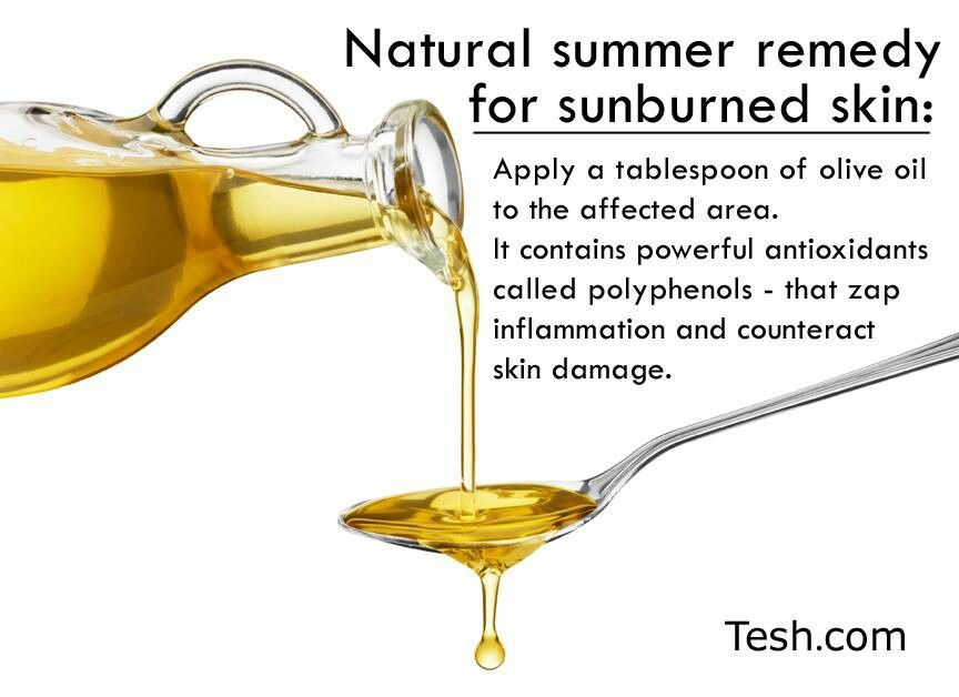 Sunburn Remedy This Worked Better Than Aloe Or Calamine Lotion Natural Remedies For Sunburn Skin Natural Remedies Natural Remedies For Rosacea