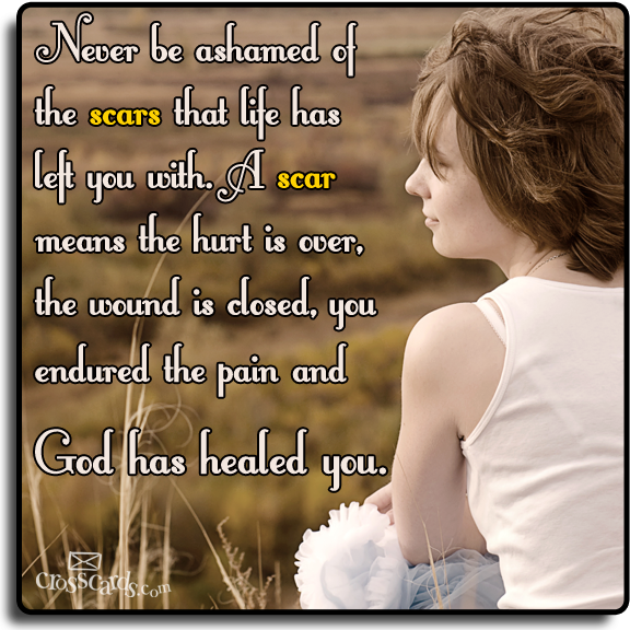 Never be ashamed of scars. How has God healed you of past hurts?
