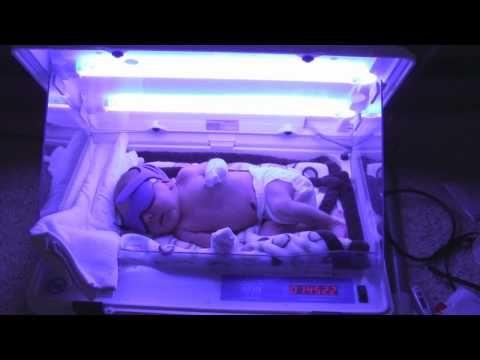 Phototherapy Jaundice Neonatal Nurse Neonatal Jaundice Newborn