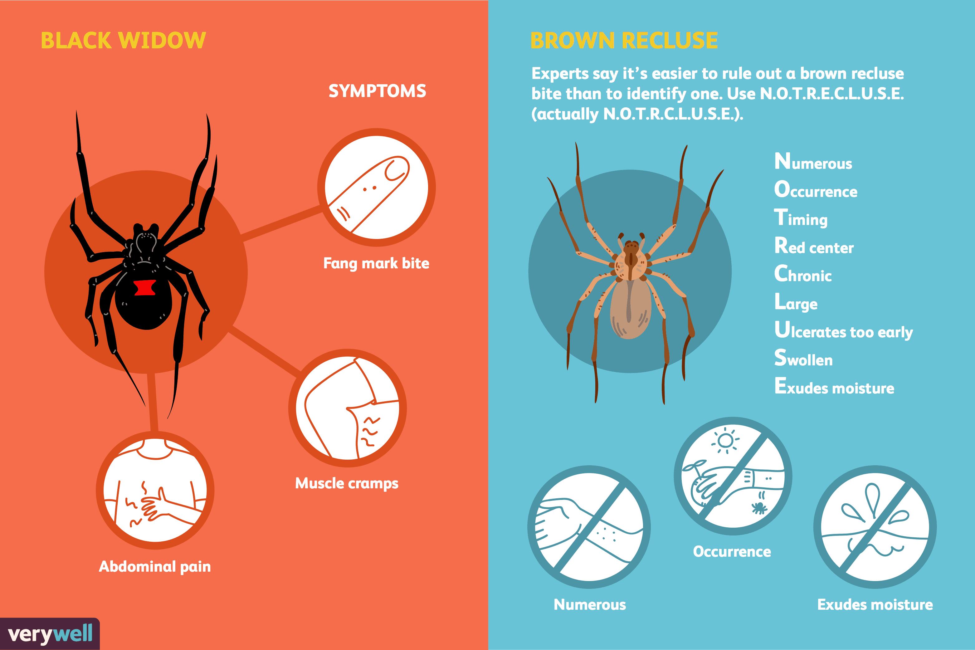 Spider Bites Symptoms, Treatment & Identification