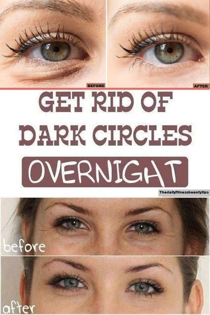 How To Get Rid Of Dark Circles Overnight? -   25 how to get rid of bags under eyes ideas