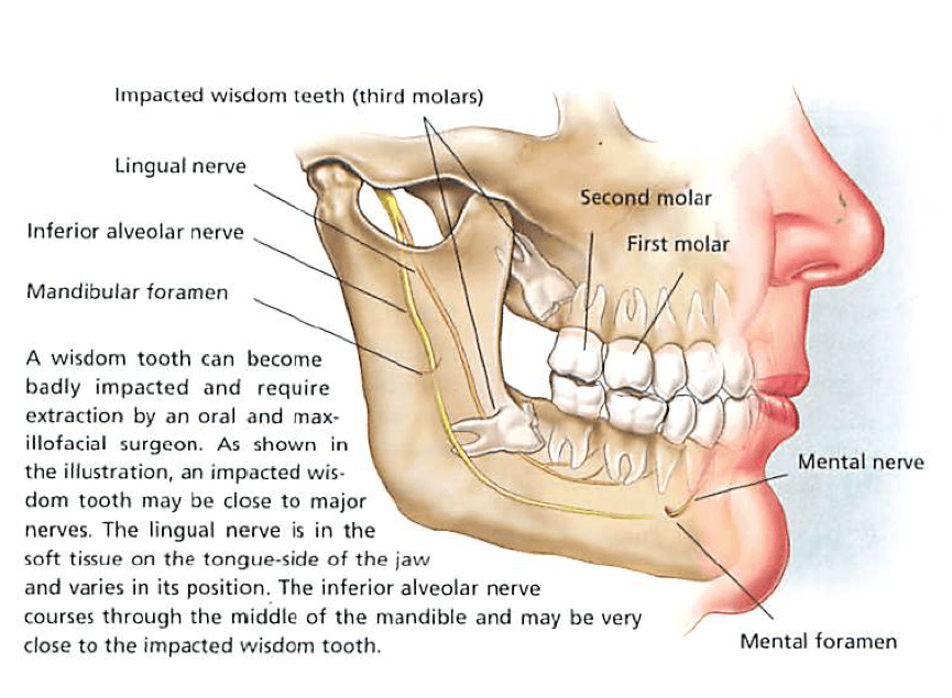 Wisdom Teeth Also Called Third Molars Usually Do Not Push Through