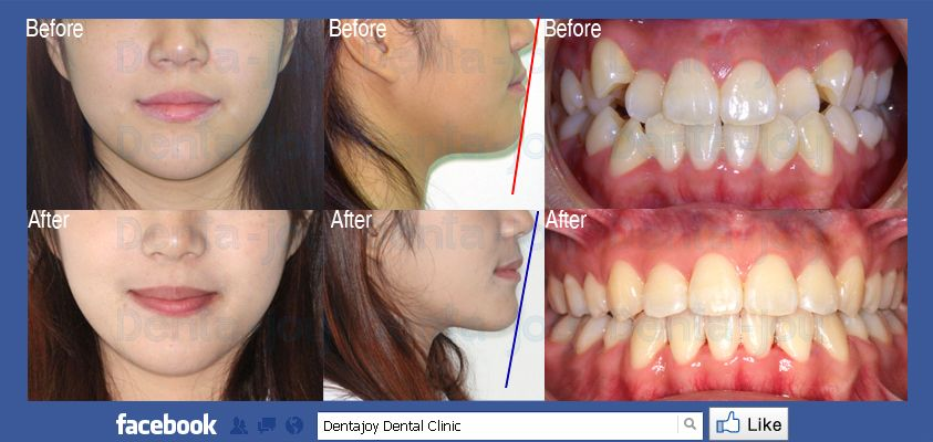 Orthodontics Case Study Crowding Lower Jaw Problem We Solved With Braces Extraction 4 Teeth Non Surgery Http Orthodontics Dental Braces Jaw Surgery