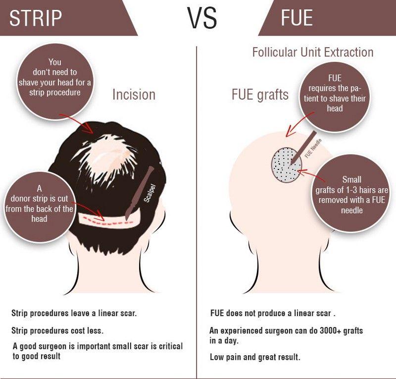 Most Common Types Of Hair Transplant Hair Transplant Pinterest