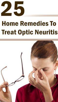 optic neuritis treatment symptoms causes and diagnosis tips to rh pinterest com