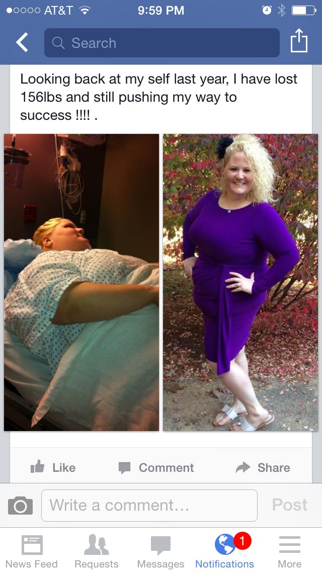 Gastric Bypass Surgery Success!!! 156lbs loss and still ...