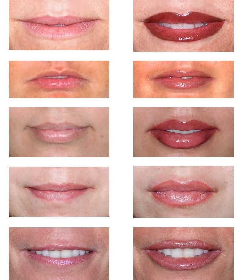 Before & After- Permanent Lip Makeup … | More Makeup Please! in 2019…