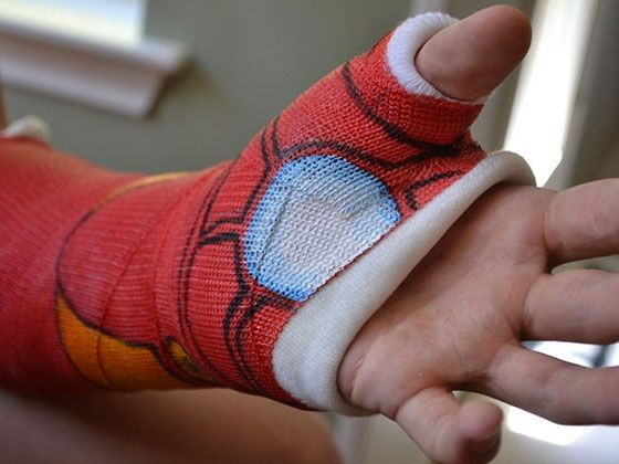 Brilliantly Designed Casts Make Broken Bones Look Good - 15 brilliantly decorated casts well worth broken bones